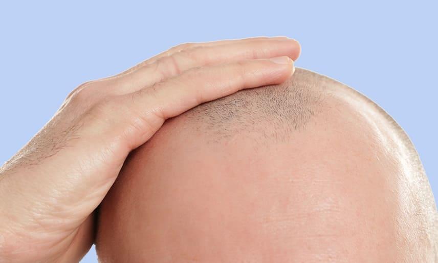 perte de cheveux après une radiothérapie