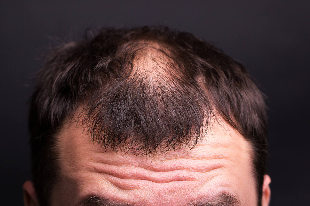 une greffe peut elle faire repousser les cheveux apres une radiotherapie