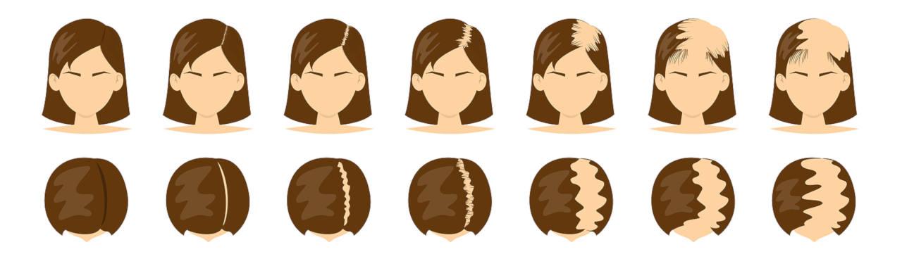 les différents stages de la calvitie féminine