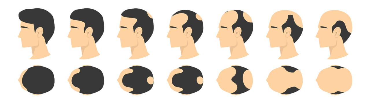 les différents stages de la calvitie masculine