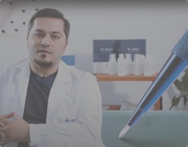 La greffe de cheveux Saphirexpliquée par le Dr. Balwi