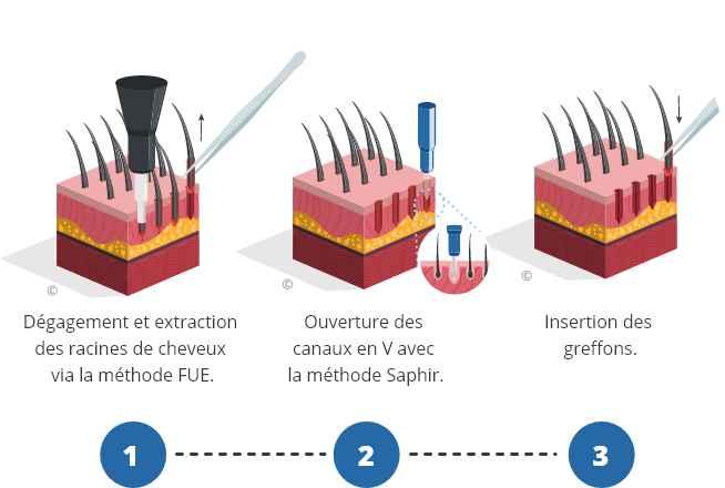infographique montrant le processus d'une greffe de cheveux saphir