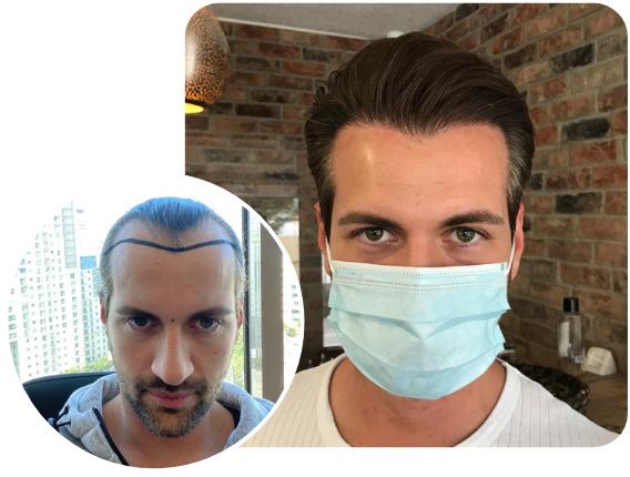 patient elithair s'étant fait greffer 3800 greffons avec la greffe de cheveux saphir