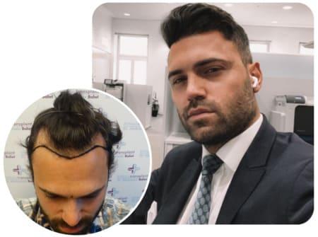 patient elithair s'étant fait greffer 3150 greffons pour sa greffe de cheveux en Turquie