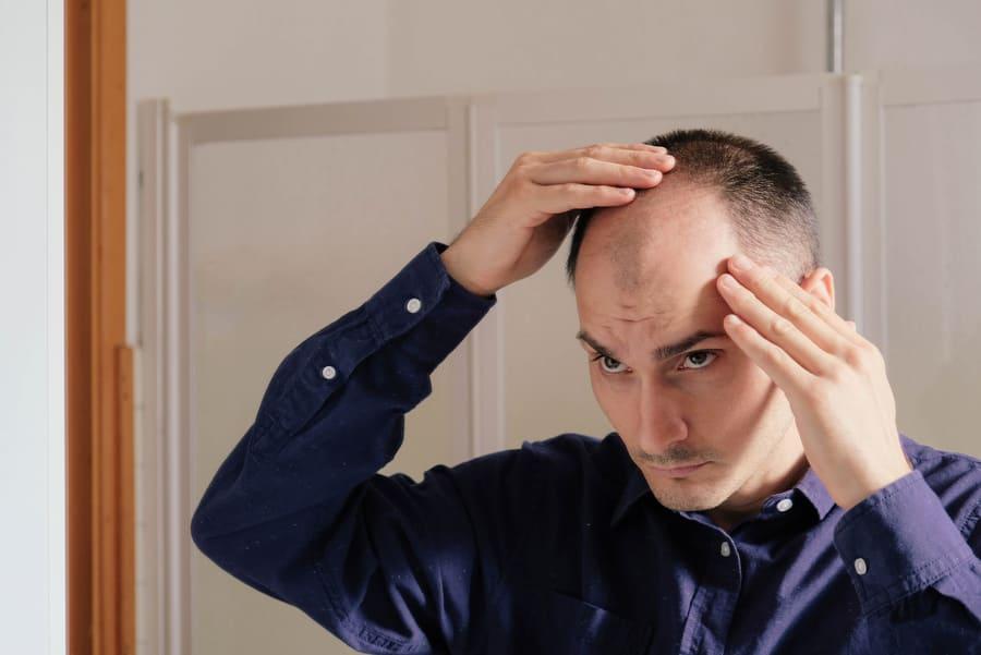 Mann leidet unter erblich bedingter Haarausfall