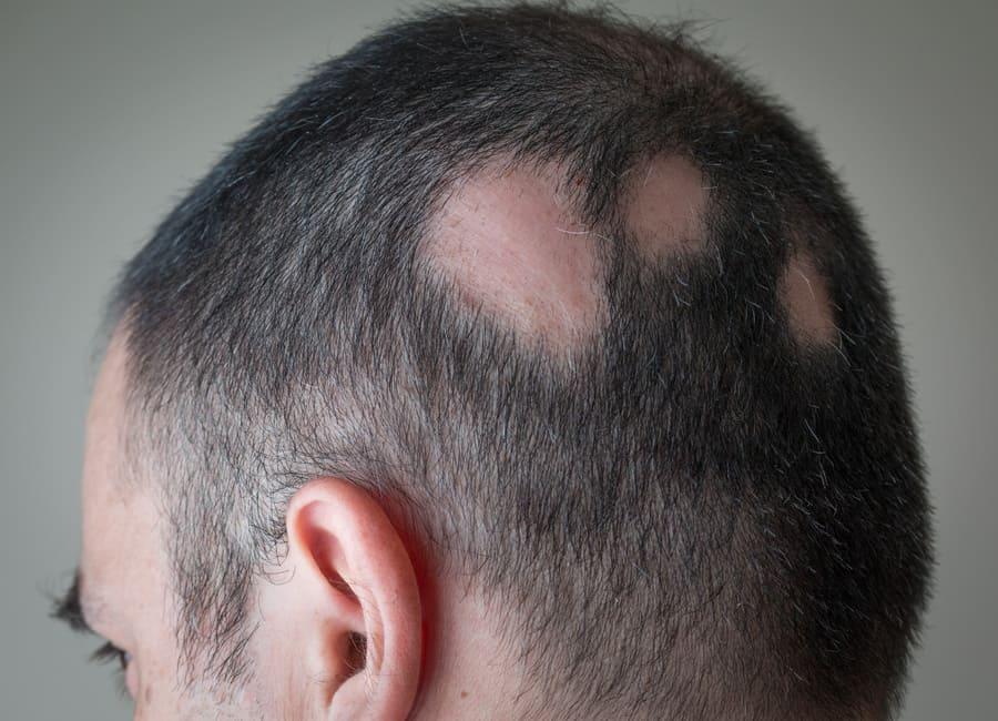 Kreisrunder Haarausfall auf Hinterkopf von Mann