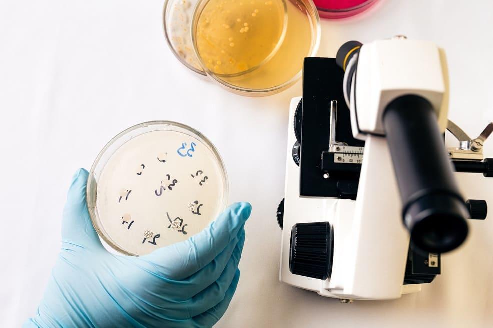 Hand hält Petrischale mit Staphylococcus aureus Bakterien neben einem Mikroskop