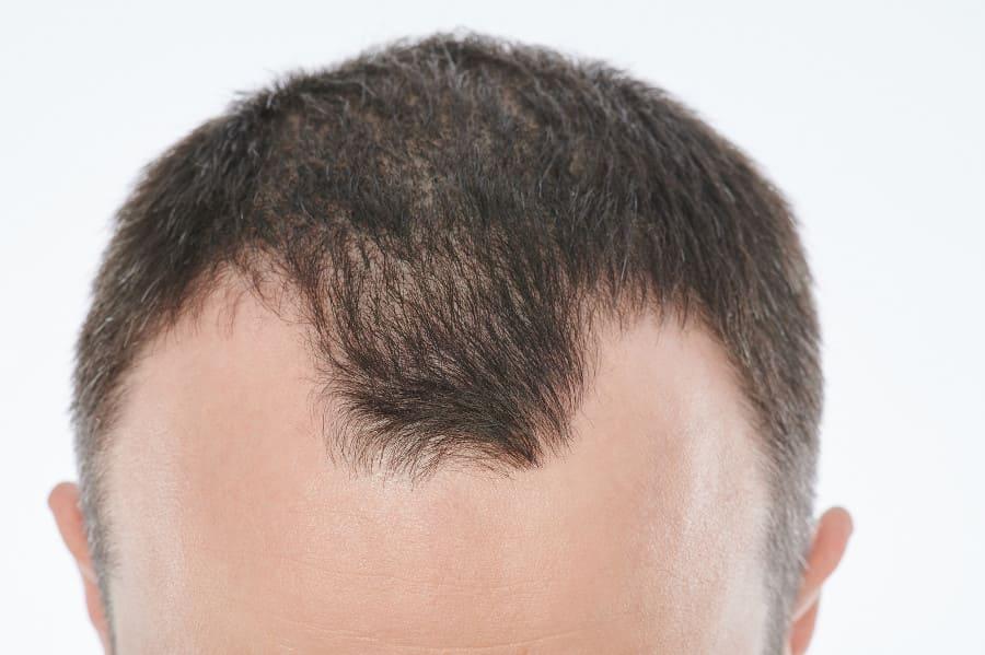 Frontalaufnahme eines Mannes mit Kopfhaut Pilz und Haarausfall