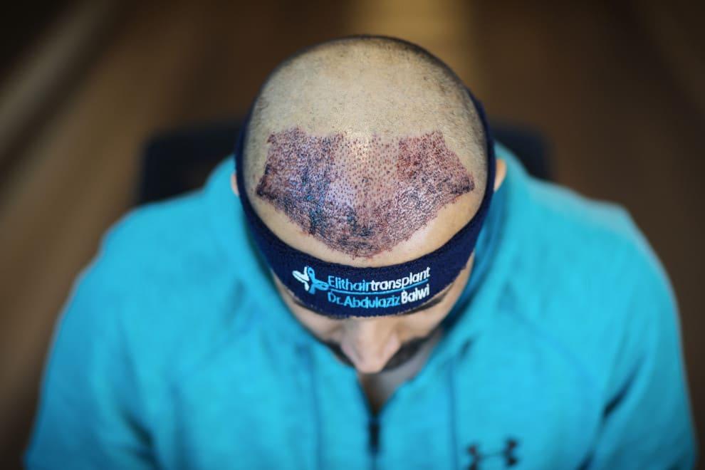 Nahaufnahme des Empfängerbereichs nach Haartransplantation