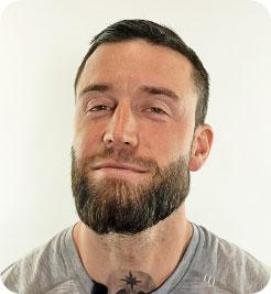 bottone che reindirizza alla pagina del trapianto di barba di Elithair