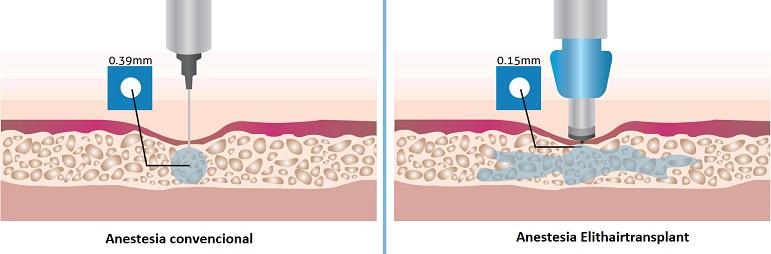 infográfico: Anestesia convencional vs. anestesia Elithair